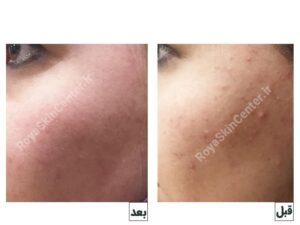 لایه برداری و جوانسازی پوست صورت با لیزر